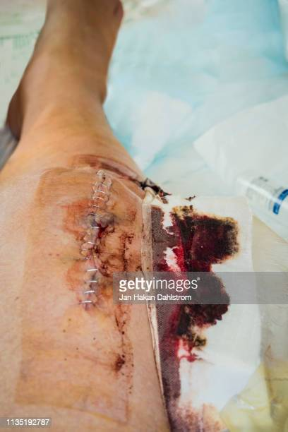 changing bandages after knee surgery - bandage stock pictures, royalty-free photos & images
