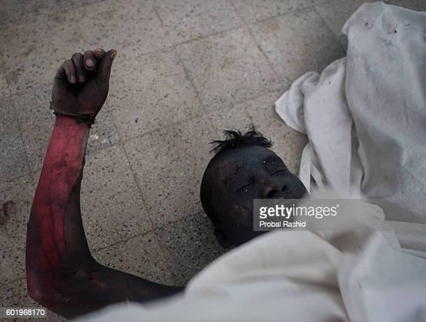 TONGI GAZIPUR DHAKA BANGLADESH A charred body of a worker at Tongi General Hospital after a devastating fire originated following a boiler explosion...