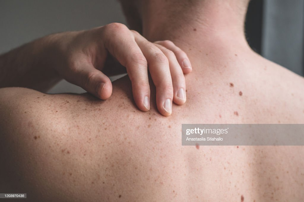 Checking benign moles. Close up detail of the bare skin on a man back with scattered moles and freckles : Stock Photo