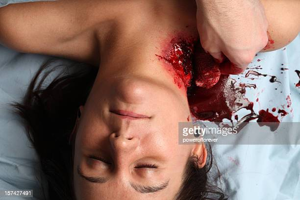 checking the dressing on a mauling victim - murder victim stock pictures, royalty-free photos & images