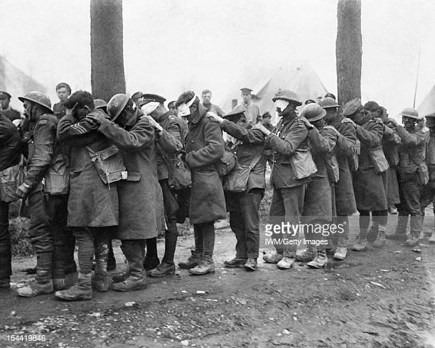 Chemical Warfare In The Twentieth Century British troops blinded by tear gas wait outside an Advance Dressing Station near Bethune 10 April 1918 An...