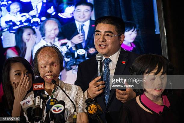 Chen Guangbiao a Chinese recycling magnate worth approximately $400 Million speaks with two severely deformed women one of whom he claims to have...
