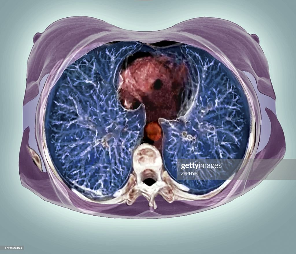 Chest Anatomy 3d Ct Scan Stock Photo Getty Images