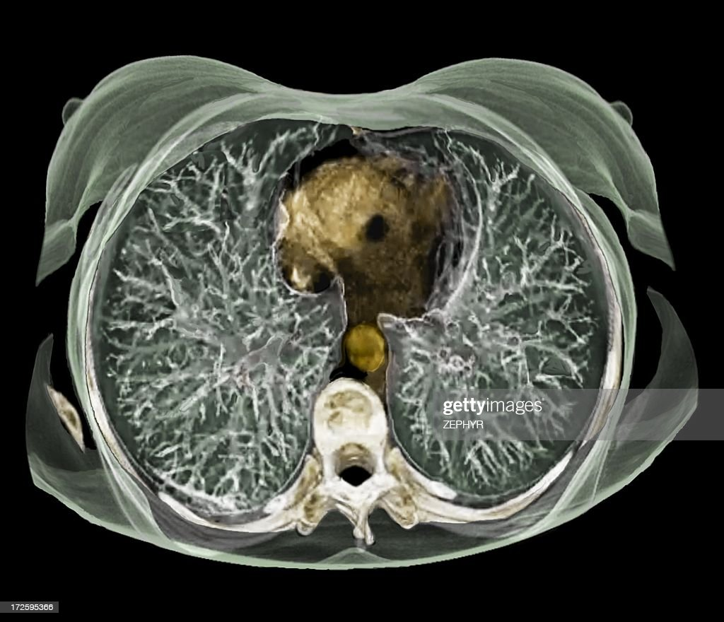 Chest Anatomy 3d Ct Scan Stock Photo | Getty Images