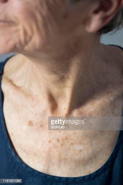 chest of old woman - macchie sulla pelle foto e immagini stock
