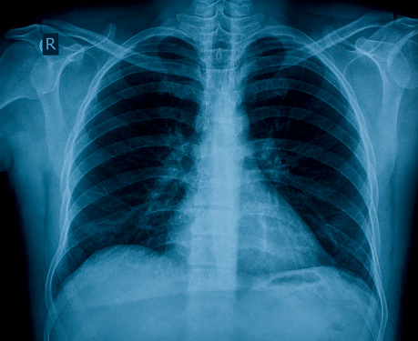 Chest X-ray image for physician's examination 92988886