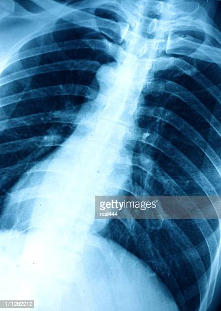 chest x-ray image - animal rib cage stock photos and pictures