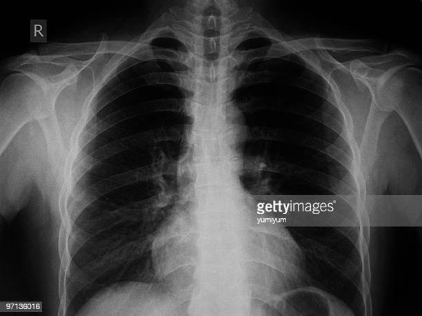 chest x-ray image - chest stock photos and pictures
