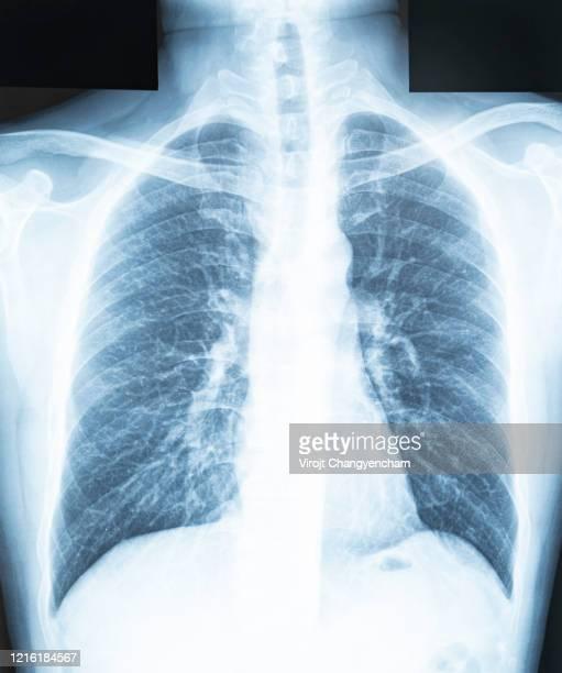 """chest x-ray of a patient""""u2019s lungs and respiratory tract - organos internos del cuerpo humano fotografías e imágenes de stock"""