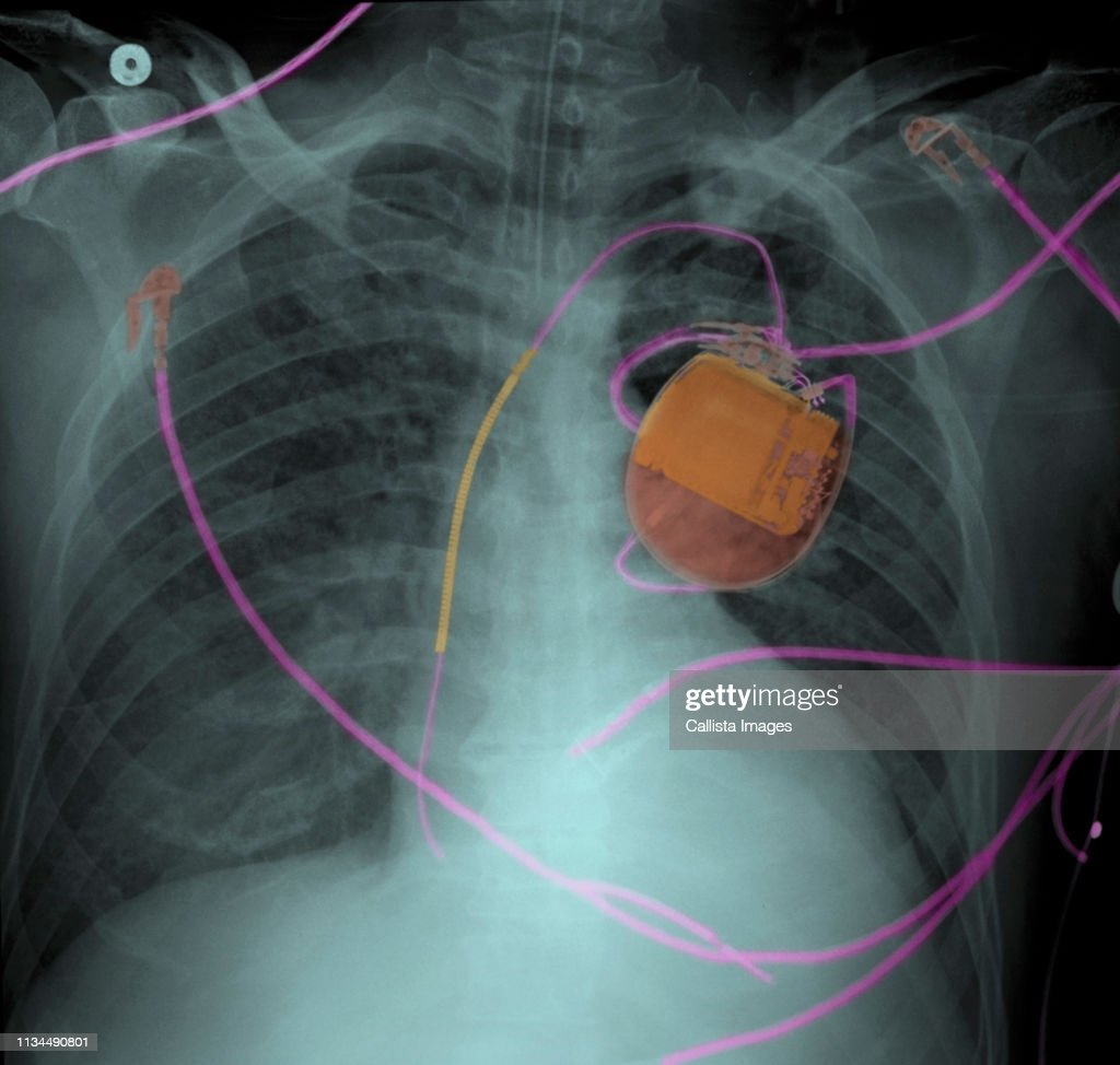 Chest x-ray of pacemaker and pulmonary edema : Stock Photo