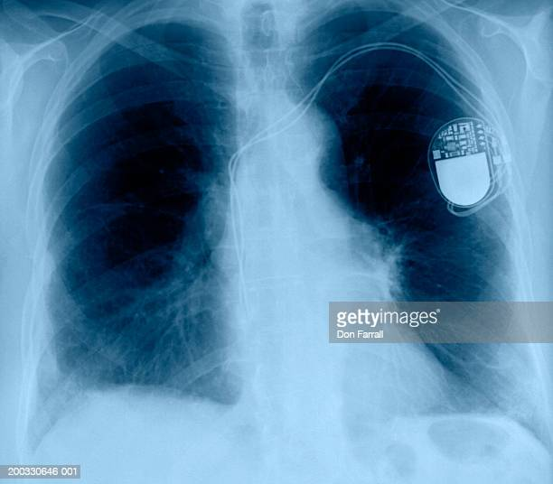 chest x-ray of person with pacemaker (digital enhancement) - pacemaker stock pictures, royalty-free photos & images