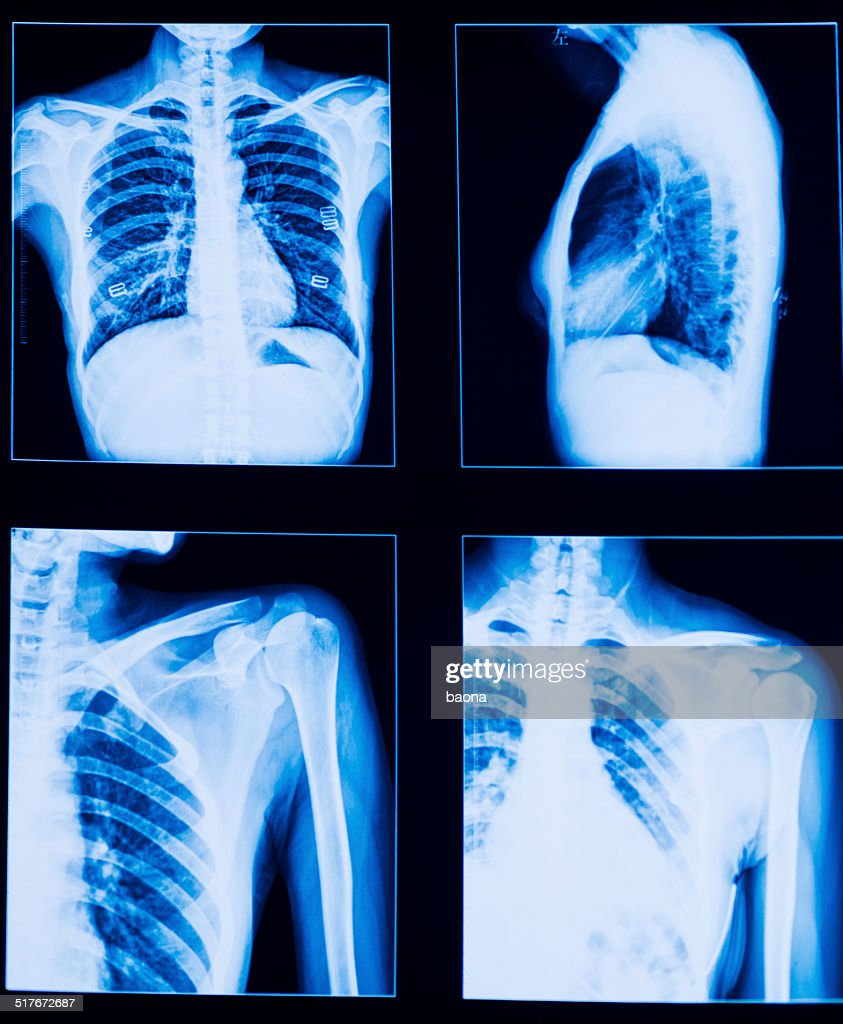 Brust Xray Stock-Foto | Getty Images