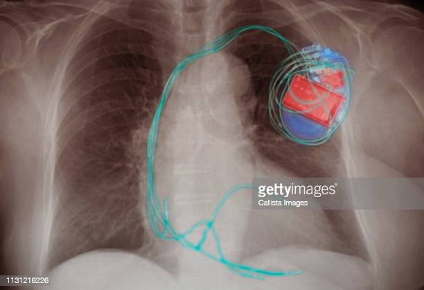 chest x-ray showing an implanted pacemaker - pacemaker stock pictures, royalty-free photos & images