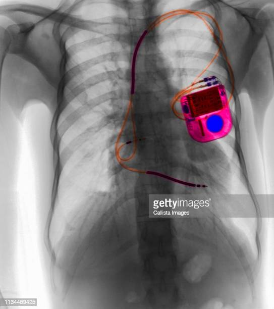 chest x-ray showing pacemaker - pacemaker stock pictures, royalty-free photos & images