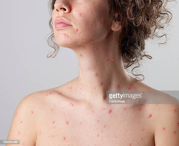 chickenpox varicella zoster virus - chickenpox stock pictures, royalty-free photos & images