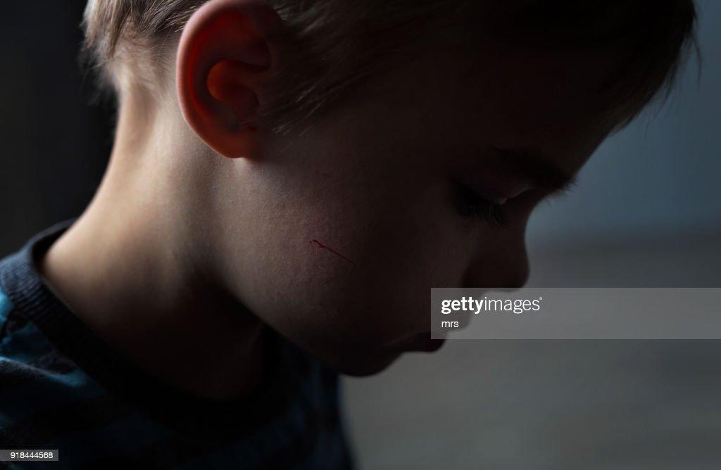 Child abuse : Stock Photo
