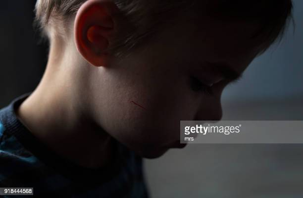 child abuse - bruise stock photos and pictures