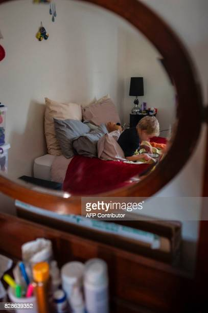 A child affected by Costello syndrome and currently treated with cannabis oil is seen in his mother's bedroom at their home on July 18 2017 in...