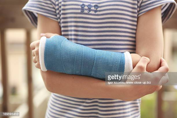 child arm with a cast - cast colors for broken bones stock pictures, royalty-free photos & images