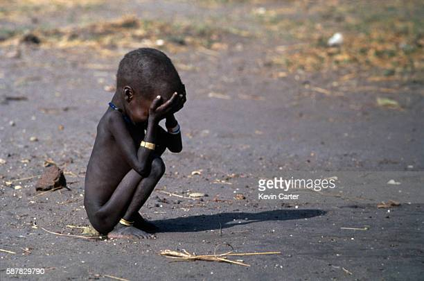Child famine victim in a feeding center