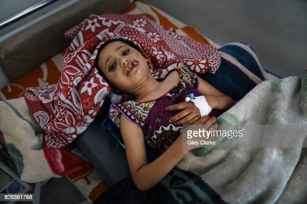 A YEMEN A child injured by an air strike lies in hospital in Sana'a