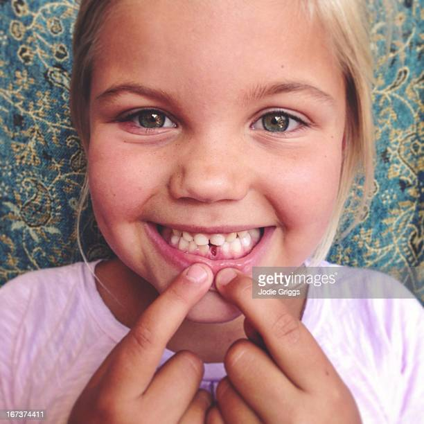 child showing gap in mouth from missing baby tooth - losing virginity stock pictures, royalty-free photos & images