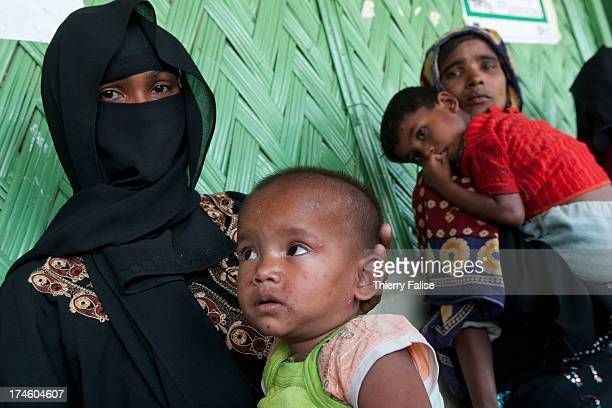 A child shows the symptoms of small pox in the clinic of the makeshift or unregistered Leda Rohingya refugee camp A population estimated by the...