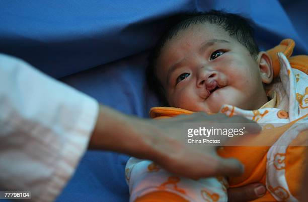 A child suffering from a cleft lip and palate receives an examination at the Nanjing Drum Tower Hospital during registration for treatment at a...