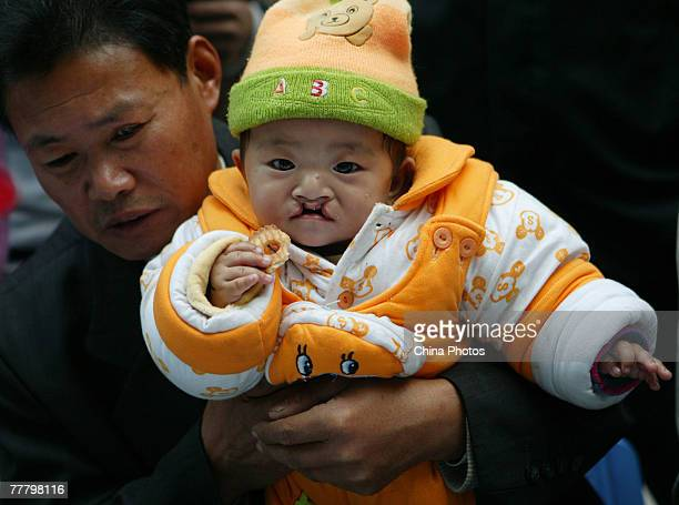 A child suffering from a cleft lip and palate waits for an examination at the Nanjing Drum Tower Hospital during registration for treatment at a...