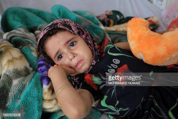 A child suffering from a diphtheria infection lies on a bed amid an acute diphtheria outbreak at a hospital in the capital Sanaa on October 19 2018...
