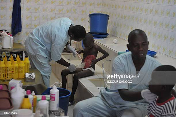 Child suffering from Buruli ulcer, also known as the Bairnsdale ulcer or Searl ulcer, is care for on September 12, 2009 at a clinic in the central...