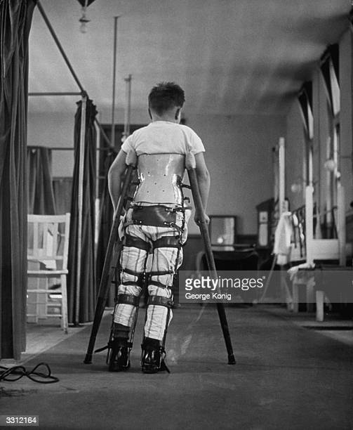 Child suffering from Infantile Paralysis learning to walk with the aid of a special support, at Queen Mary's Hospital, London.