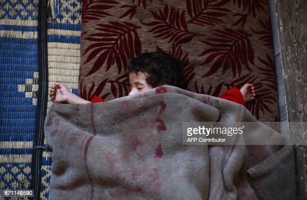 A child suffering from malnutrition sleeps as family members prepare a meal of corn and cabbage on November 6 2017 in Saqba in the besieged rebelheld...
