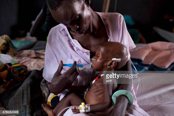 A child suffering from severe malnutrition is assisted by medical staff in a medical camp run by international humanitarian organisation Doctors...