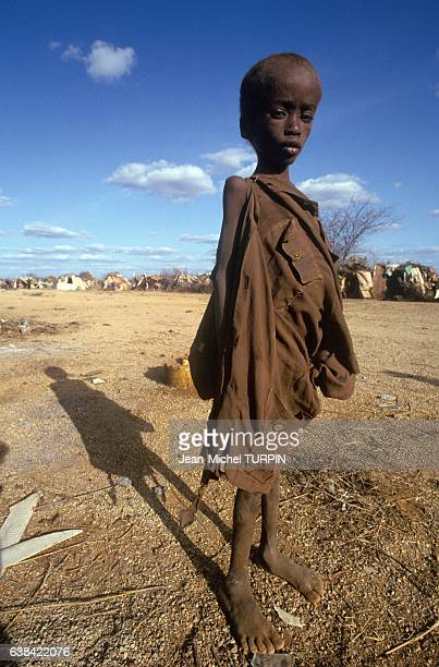 Child suffering from starvation in Baidoha Somalia on August 30 1992