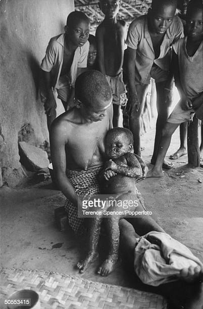 A child suffering from the smallpox disease