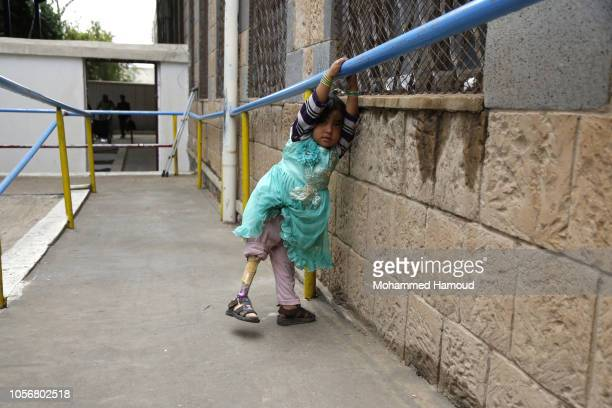 A child war victim from Yemen who uses a prosthetic limb after losing her leg in an airstrike is seen at a rehabilitation center on October 19 2018...