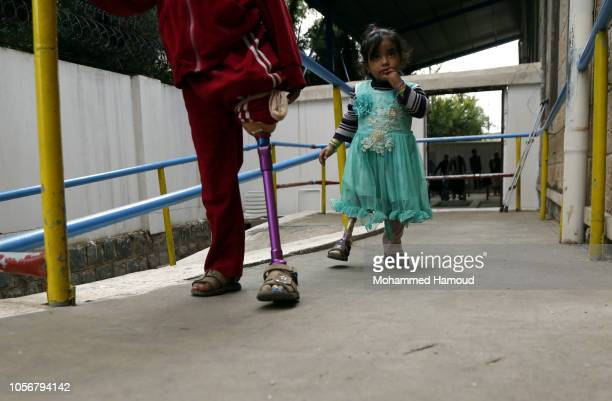 Child war victims from Yemen, who use prosthetic limbs after losing their legs in an airstrike, are seen at a rehabilitation center on October 19,...