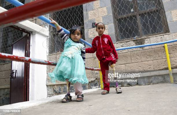 Child war victims from Yemen who use prosthetic limbs after losing their legs in an airstrike are seen at a rehabilitation center on October 19 2018...