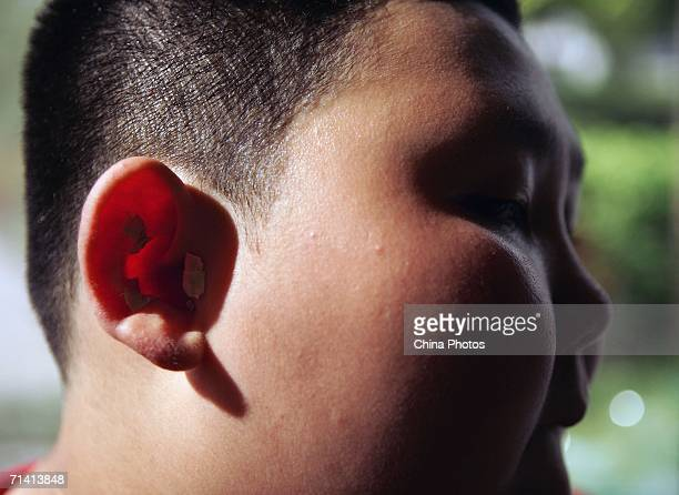 A child who attends a weightlosing summer camp organized by the Aimin Slimming Centre receives treatment July 10 2006 in Wuhan of Hubei Province...