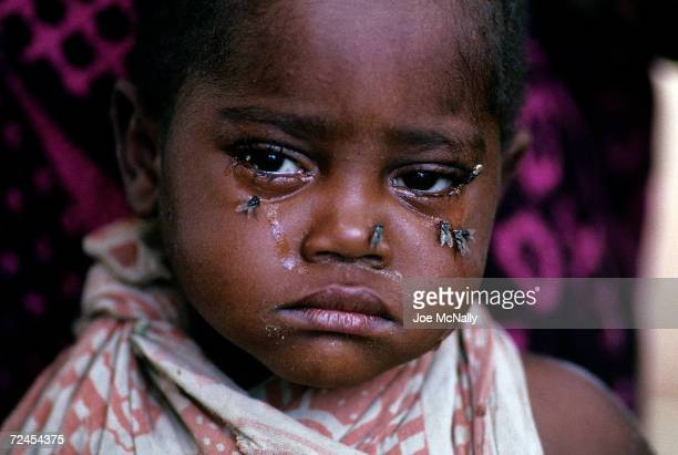 A child who is at great risk of contracting tracoma the world's leading source of infectious blindness sits in 1992 in Tanzania Six out of every ten...