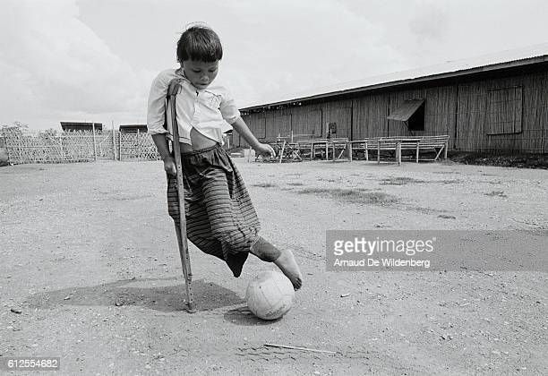 A child who lost a leg plays in the Khmer refugees camp of Nong Chan where 40000 people live