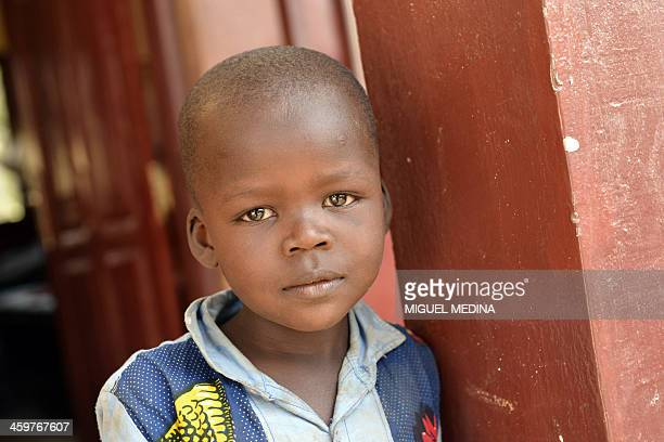 A child who suffers from nutritional problems poses at the therapeutical nutritional unit of the Pedriatic hospital in Bangui on December 30 2013...
