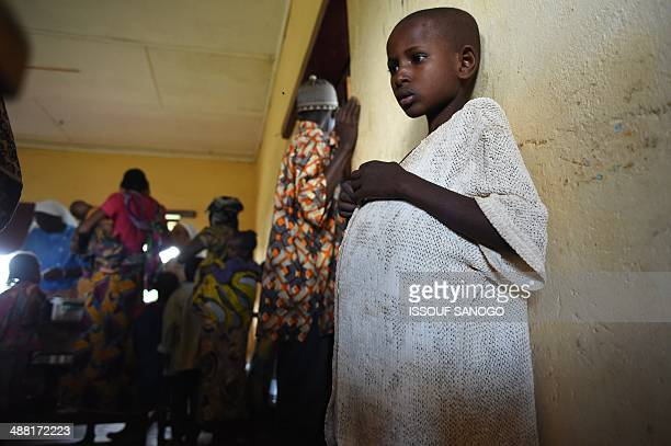 A child with a bloated stomach showing the symptoms of the Kwashiorkor disease waits to receive care at a centre for displaced muslims fleeing the...