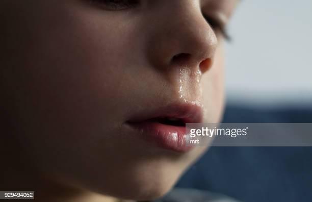 child with a runny nose - sonarse fotografías e imágenes de stock