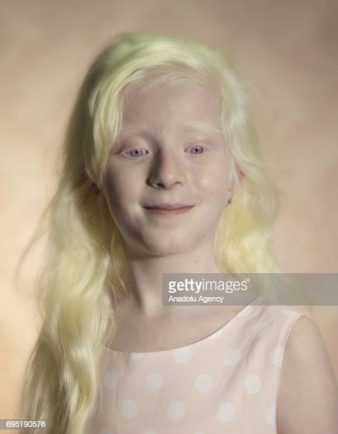 A child with albinism Hilal Hatun Toprakci poses for a photo in Istanbul province of Turkey on June 12 2017 Albinos a rare group of genetic disorders...