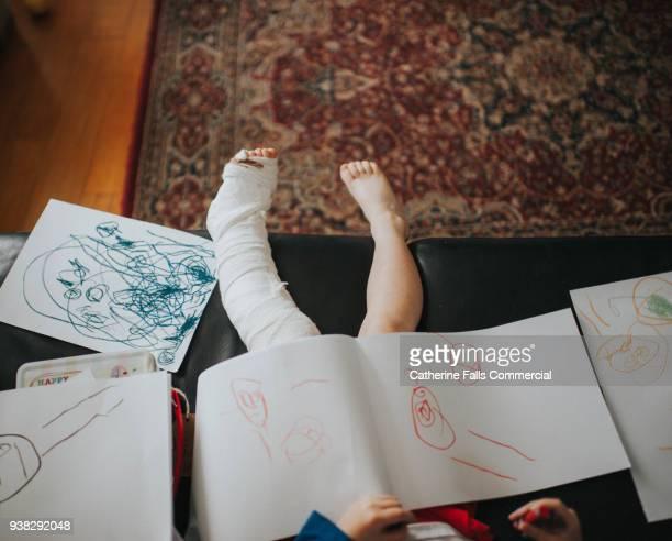 Child with broken leg