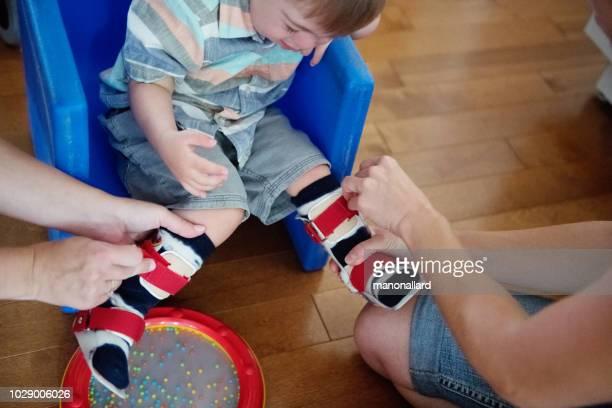 bambino con sindrome di down che indossa un dispositivo ortopedico - ricerca genetica foto e immagini stock