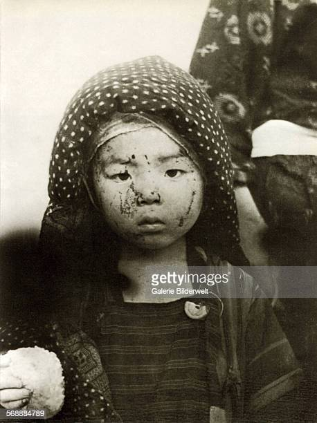 Child with her mother in Nagasaki on the morning after the dropping oft he atomic bomb. August 10, 1945. Both have received a rice dumpling from...