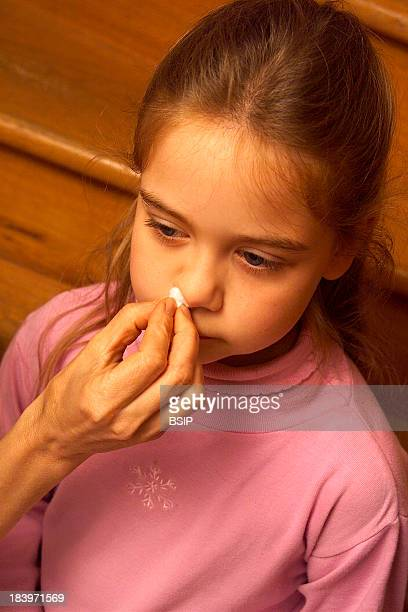 Child With Nosebleed
